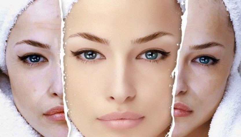 Grasa, seca o mixta ¿Cuál es tu tipo de piel?